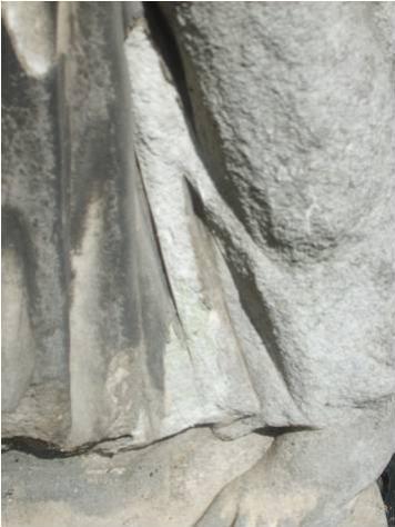Первичная и вторичная гипсовые корки, отслаивание первичной гипсовой корки.